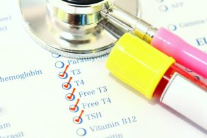Understanding your thyroid hormone blood test results